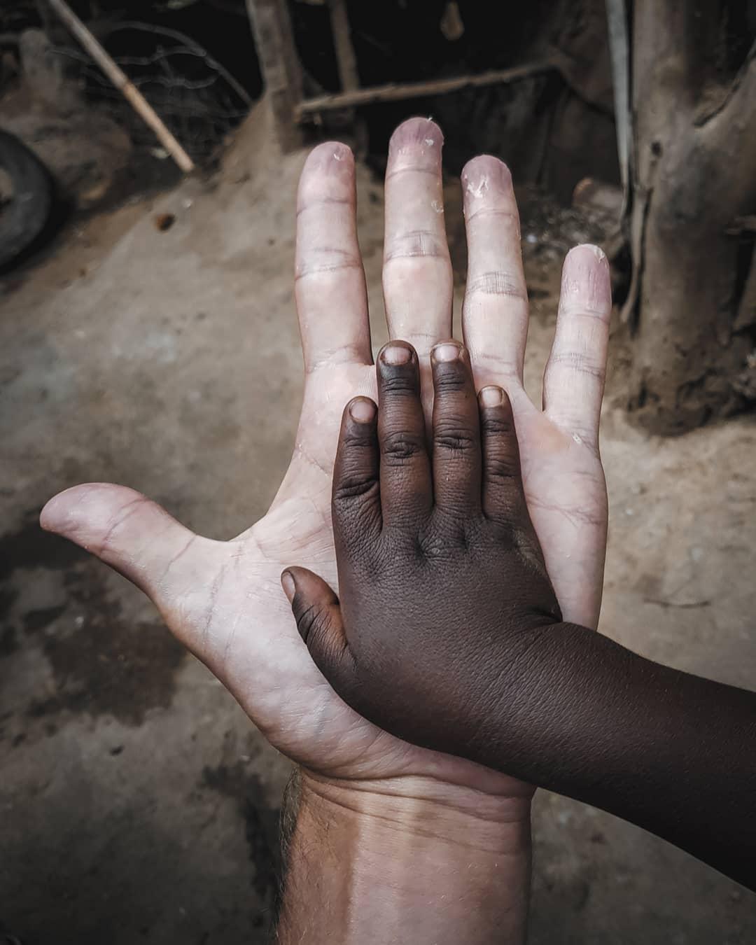 dłonie-rasizm-etiopia-podroz